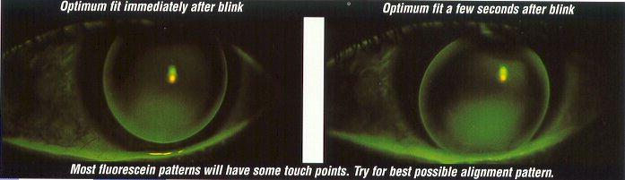 Rose K Fluorescein Pattern - Good fit
